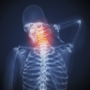 Neck pain_iStock purchased